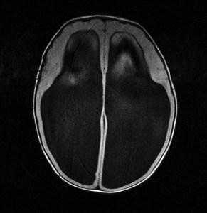 238-marinusjanmarijs.com-hydrocephalus